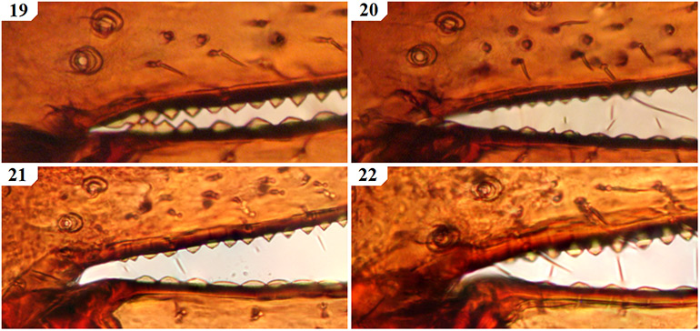 Tooth-morphology-at-the-base-of-the-chelal-fingers